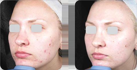Результат лечения акне в клинике Бархат (Сочи)